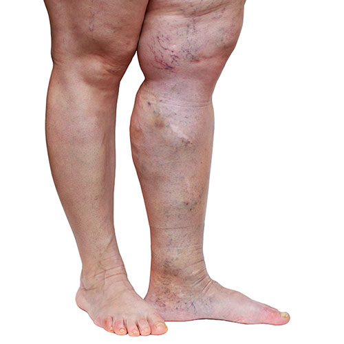 Person with edema in one legPerson with edema in one leg
