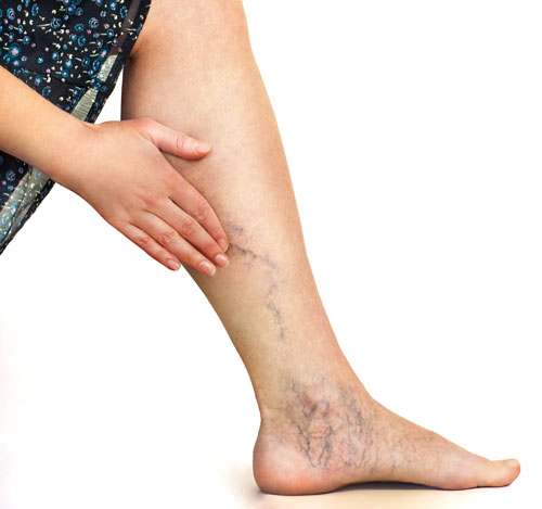 Woman with vericose veins / venous insufficiency